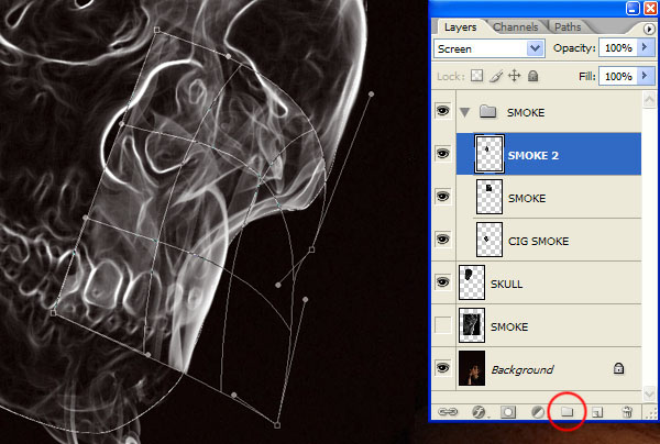 Điều chỉnh để phù hợp với hàm hộp sọ